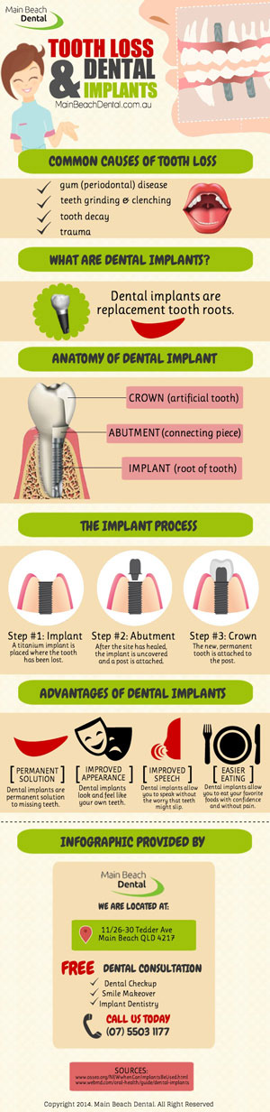 Tooth Loss And Dental Implants