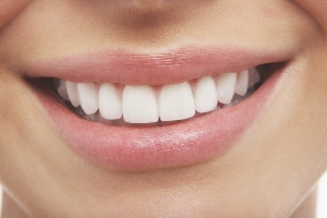 Teeth Whitening Addiction