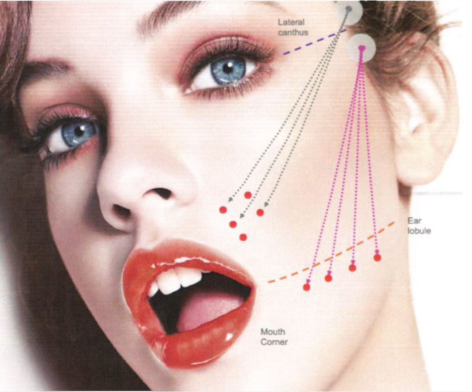 Facial Rejuvenation and Threading | Dentist Main Beach
