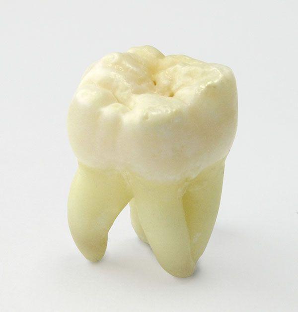 Wisdom Tooth Removal | Dentist Main Beach