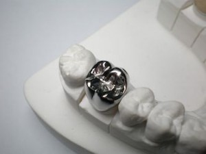 Restorative Dentistry Foods To Avoid When Wearing Dental Crowns