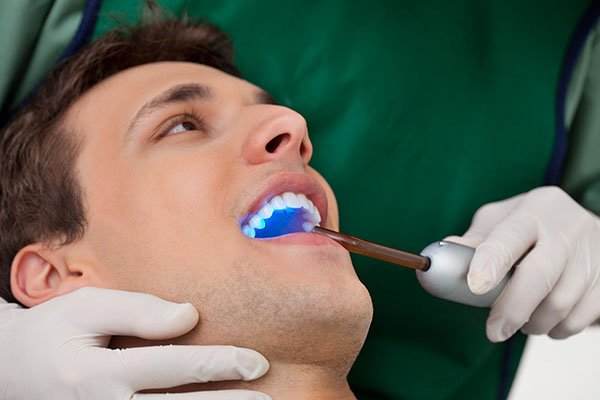 Tooth Bonding Economical And Quick Tooth Repair main beach dentist