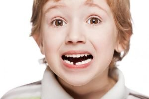 Knocked Out Teeth And Your Child What to Do | Dentist Main Beach