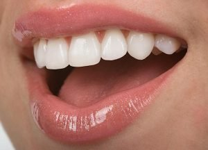Porcelain-Veneers-Dentist-Main-Beach