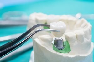 Dentist Main Beach Tips Top 5 Benefits of Crowns and Bridges