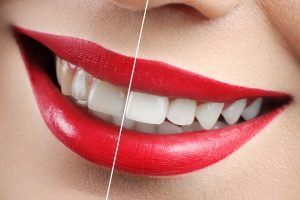 Whiten your Teeth at Main Beach Dental
