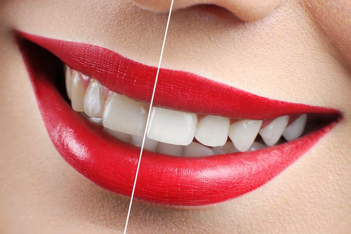 Whiten your Teeth at Main Beach Dental