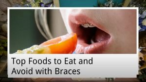 top foods to eat and avoid with braces from main beach dental